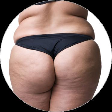 Cellulit (lipodystrofia typu kobiecego)