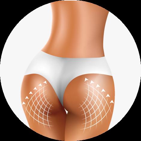 Beauty Booty zaawansowana technologia w walce o PIĘKNE POŚLADKI